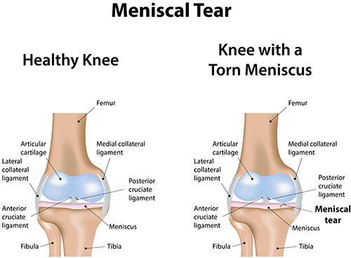 knee-meniscal